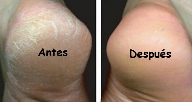 Crema hidratante para pies Prouvé
